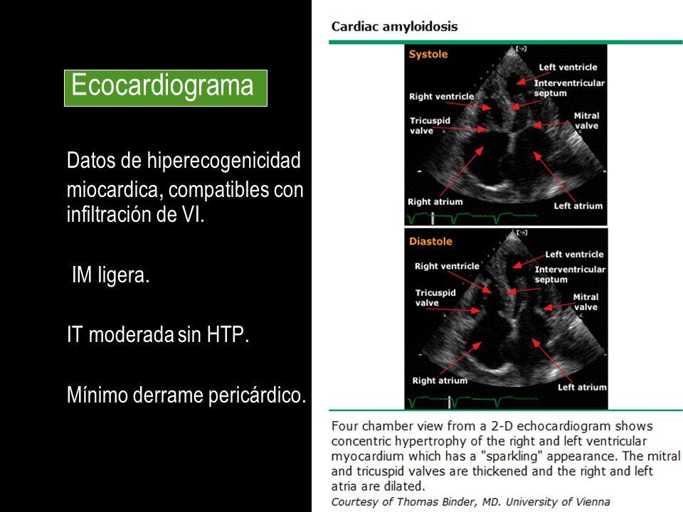 Ecocardiograma Datos de hiperecogenicidad miocardica, compatibles con infiltración de VI. IM ligera.