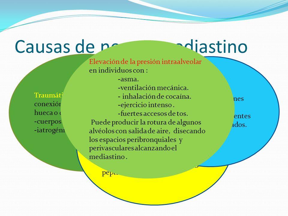 Causas de neumomediastino