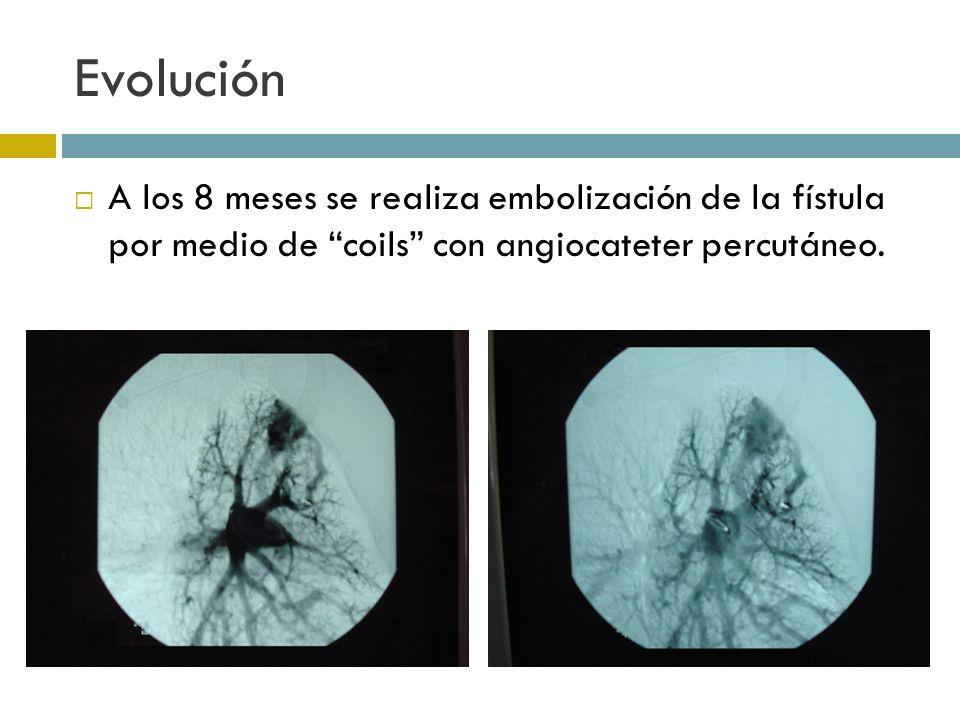 EvoluciónA los 8 meses se realiza embolización de la fístula por medio de coils con angiocateter percutáneo.