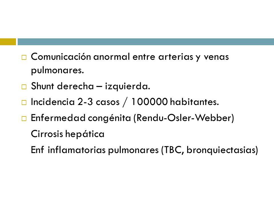 Comunicación anormal entre arterias y venas pulmonares.