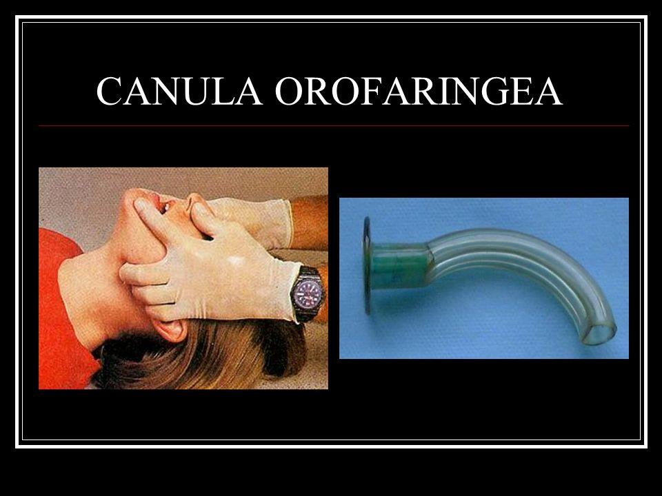 CANULA OROFARINGEA