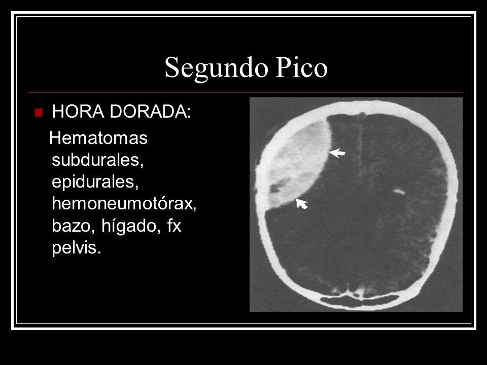 Segundo Pico HORA DORADA: