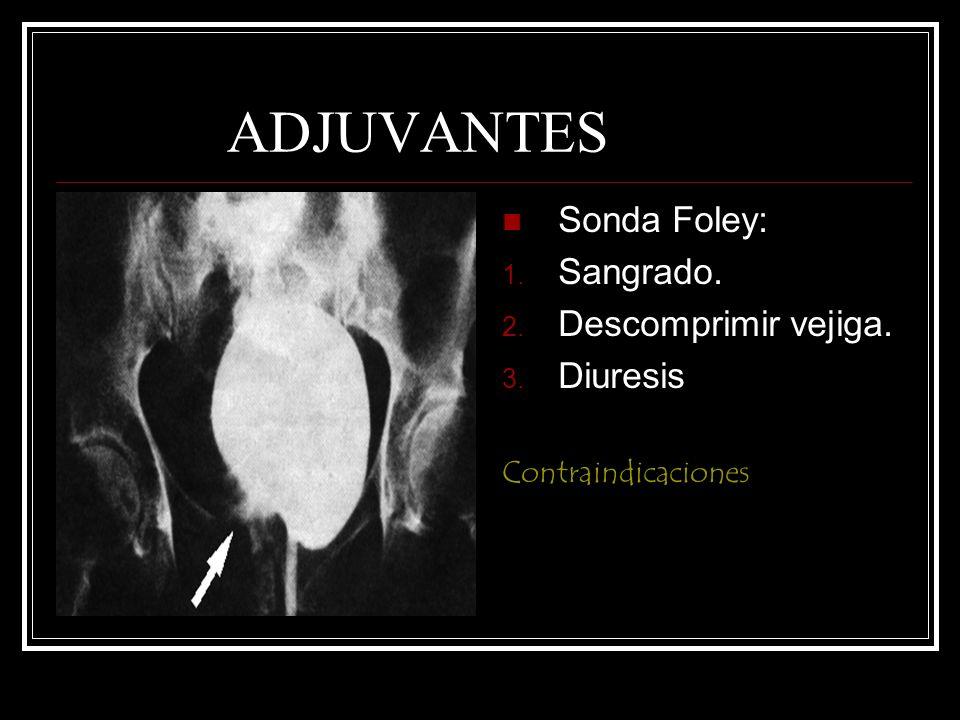 ADJUVANTES Sonda Foley: Sangrado. Descomprimir vejiga. Diuresis