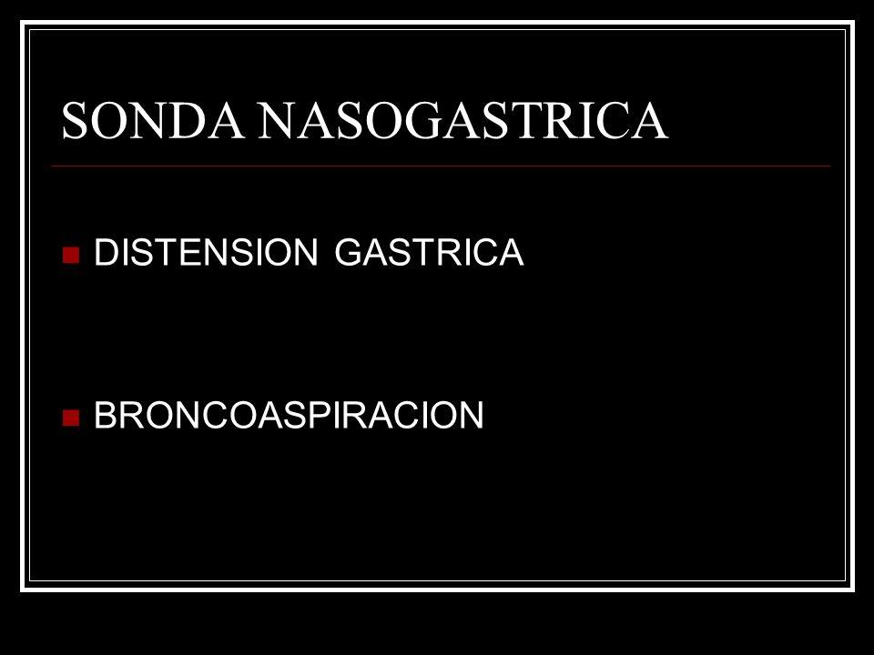 SONDA NASOGASTRICA DISTENSION GASTRICA BRONCOASPIRACION