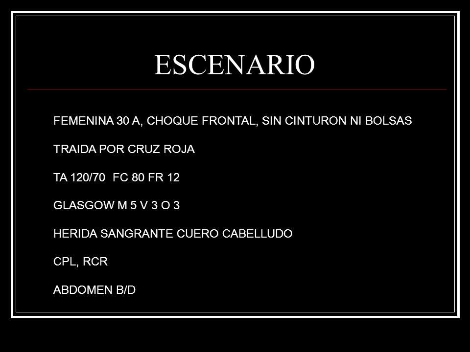 ESCENARIO FEMENINA 30 A, CHOQUE FRONTAL, SIN CINTURON NI BOLSAS