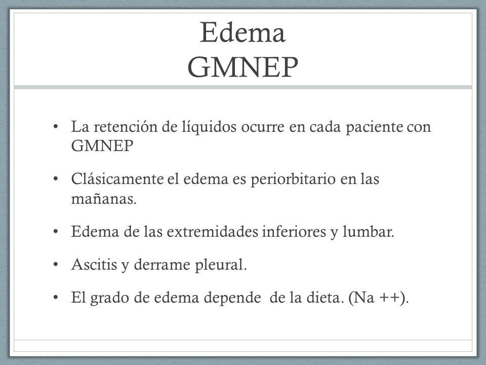 Edema GMNEP La retención de líquidos ocurre en cada paciente con GMNEP