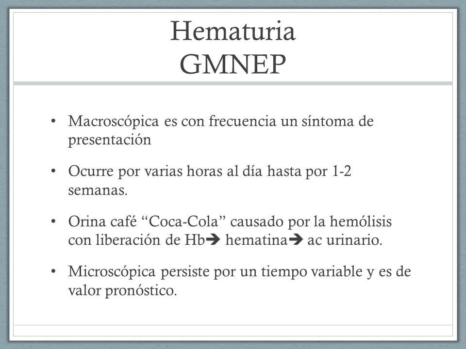Hematuria GMNEP Macroscópica es con frecuencia un síntoma de presentación. Ocurre por varias horas al día hasta por 1-2 semanas.