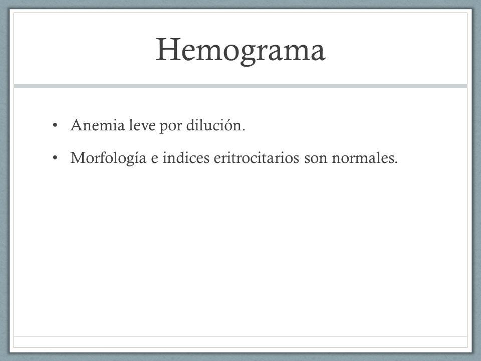 Hemograma Anemia leve por dilución.