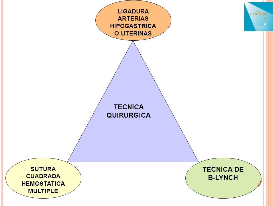SUTURA CUADRADA HEMOSTATICA MULTIPLE LIGADURA ARTERIAS HIPOGASTRICA