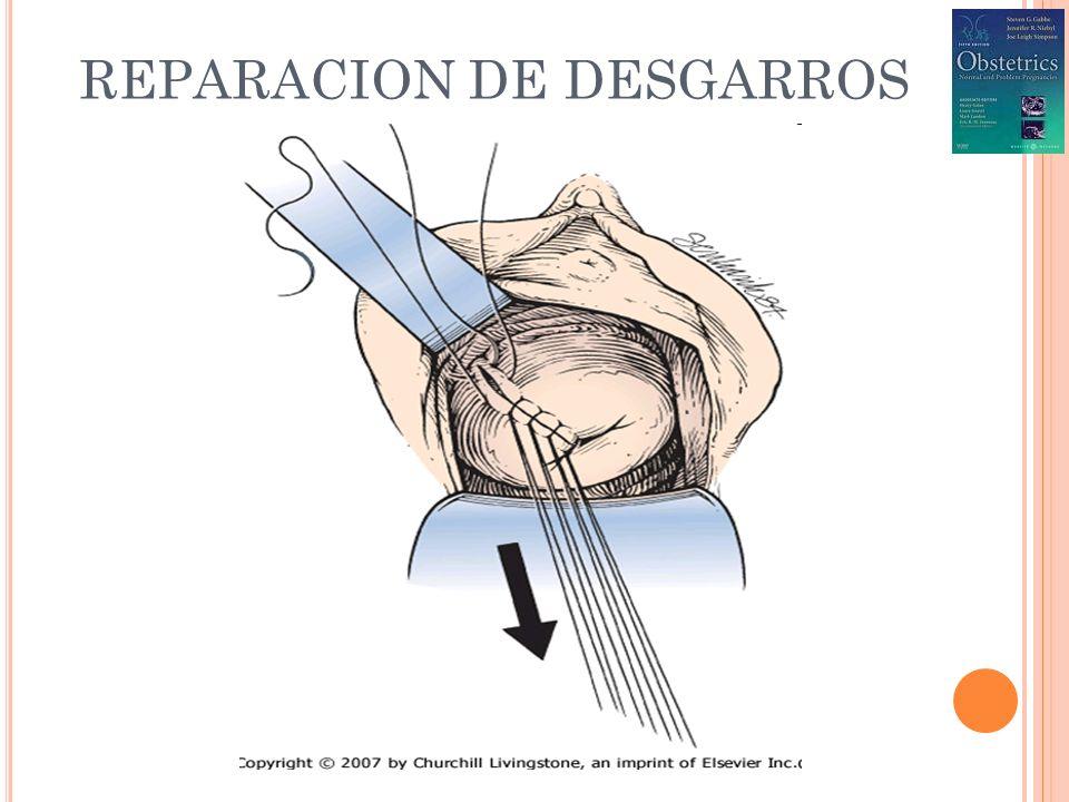 REPARACION DE DESGARROS