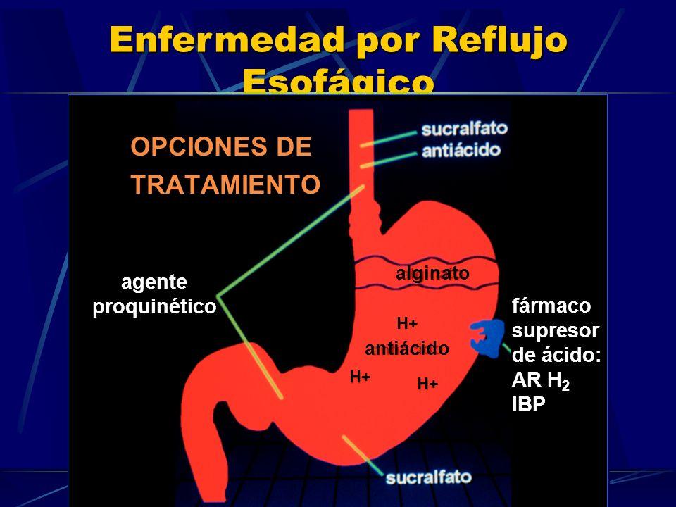 OPCIONES DE TRATAMIENTO agente proquinético fármaco supresor de ácido: