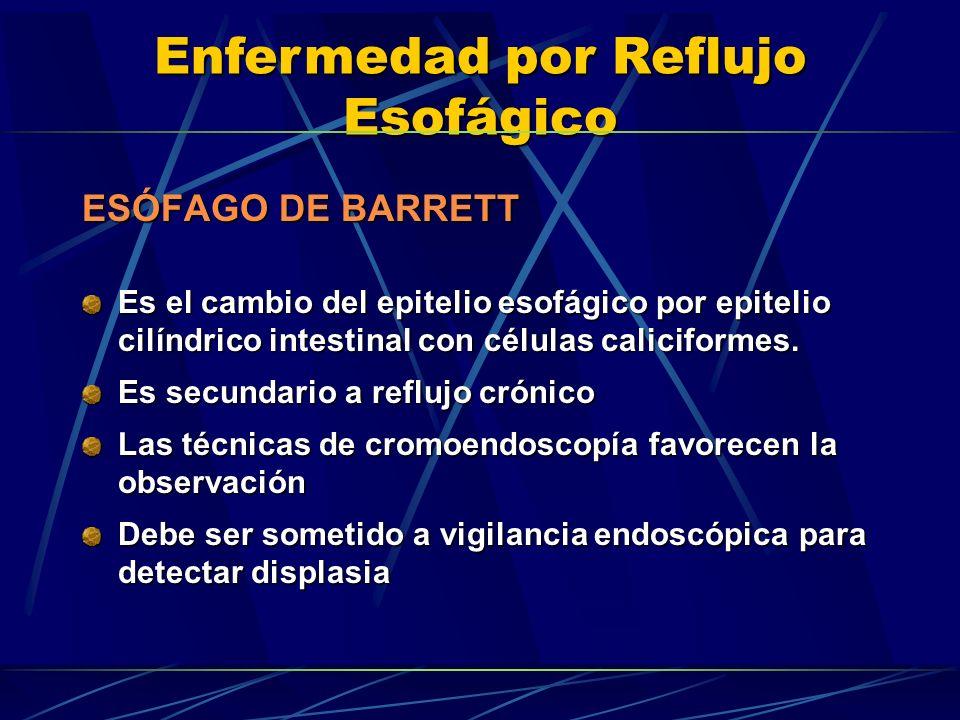 ESÓFAGO DE BARRETT Es el cambio del epitelio esofágico por epitelio cilíndrico intestinal con células caliciformes.