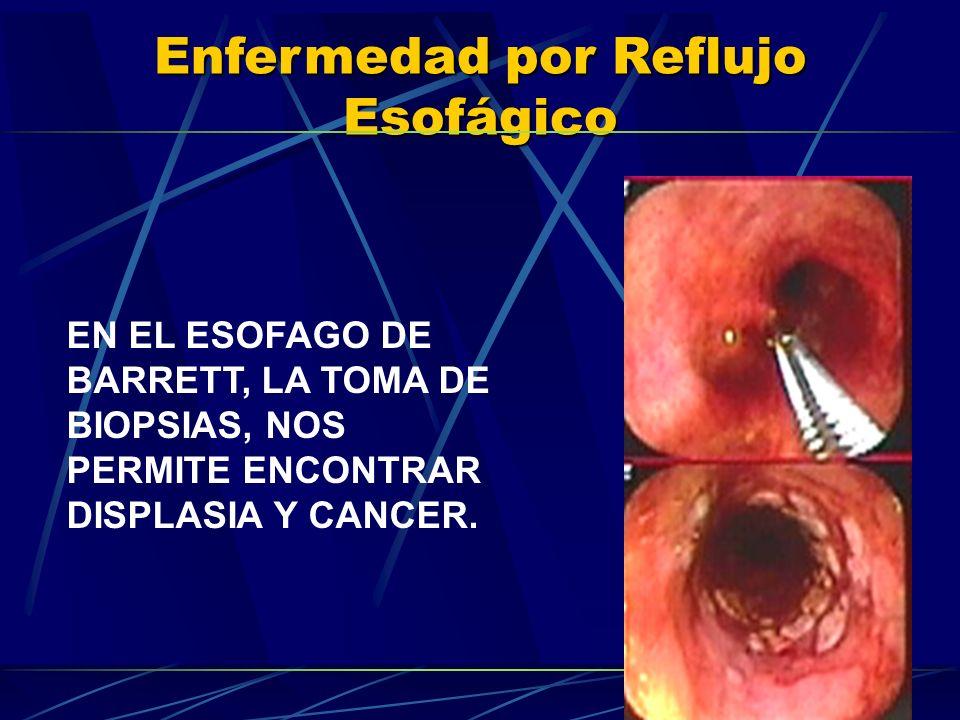EN EL ESOFAGO DE BARRETT, LA TOMA DE BIOPSIAS, NOS PERMITE ENCONTRAR DISPLASIA Y CANCER.