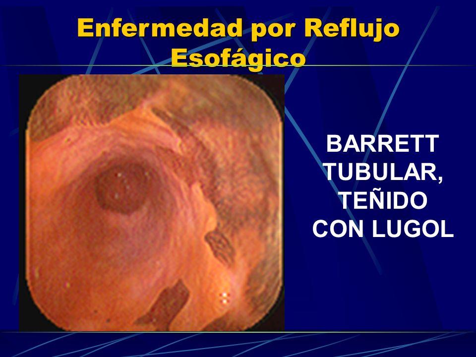 BARRETT TUBULAR, TEÑIDO CON LUGOL