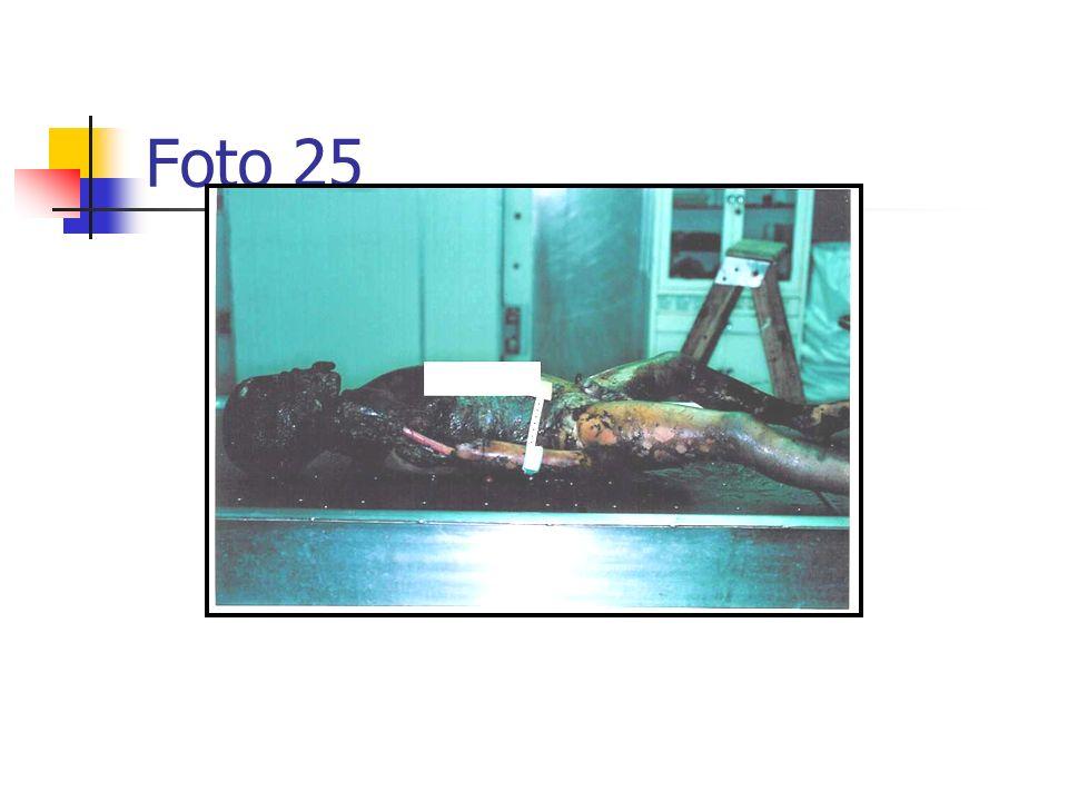 Foto 25