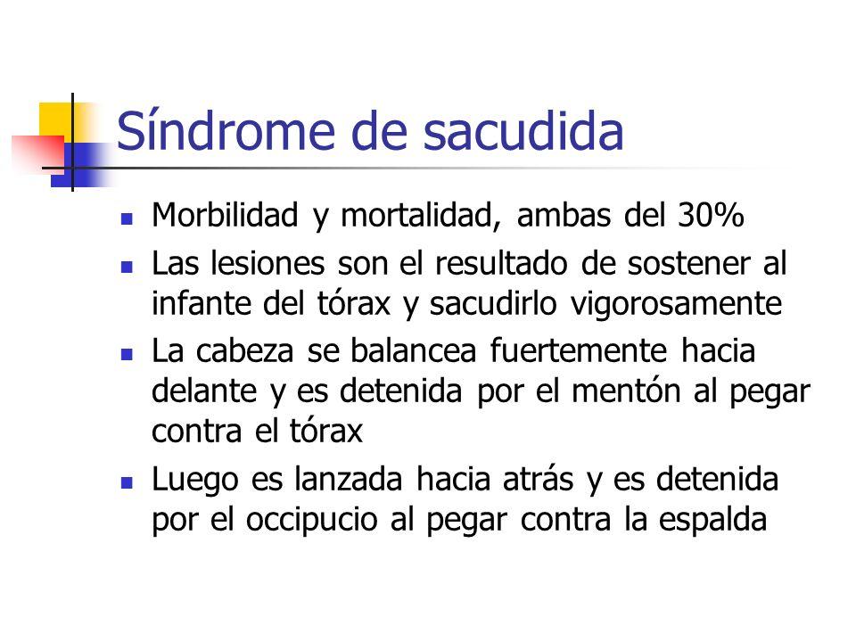 Síndrome de sacudida Morbilidad y mortalidad, ambas del 30%