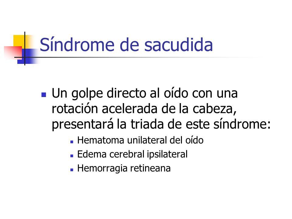 Síndrome de sacudida Un golpe directo al oído con una rotación acelerada de la cabeza, presentará la triada de este síndrome: