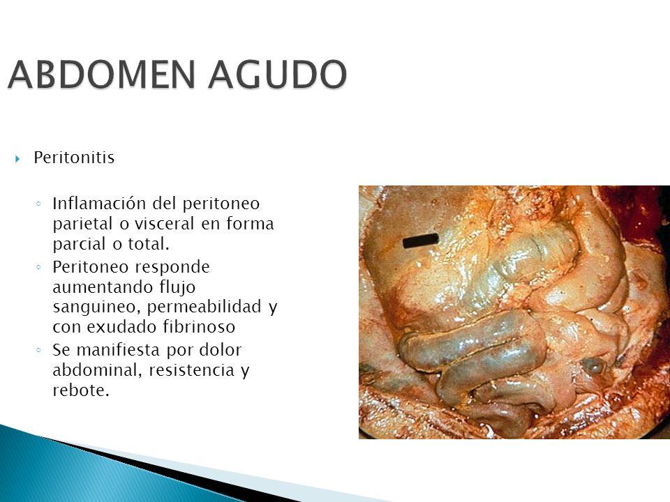 ABDOMEN AGUDO Peritonitis