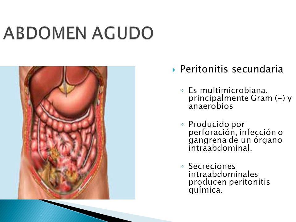 ABDOMEN AGUDO Peritonitis secundaria