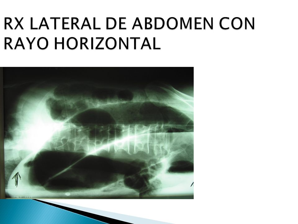 RX LATERAL DE ABDOMEN CON RAYO HORIZONTAL
