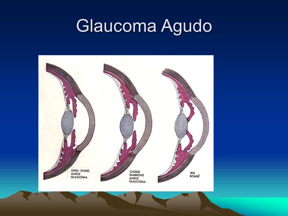 Glaucoma Agudo