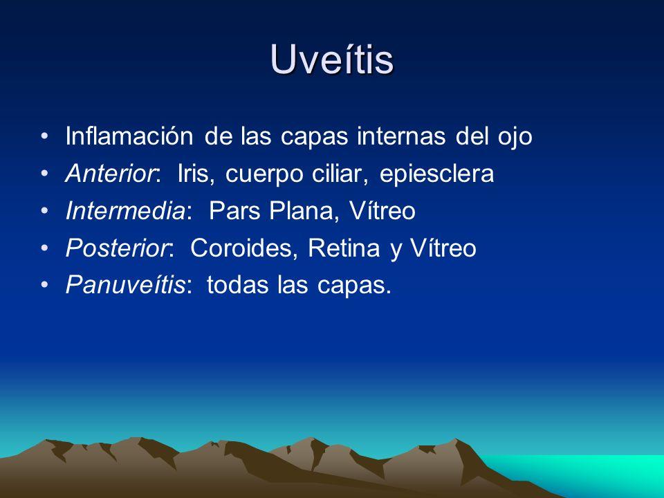 Uveítis Inflamación de las capas internas del ojo