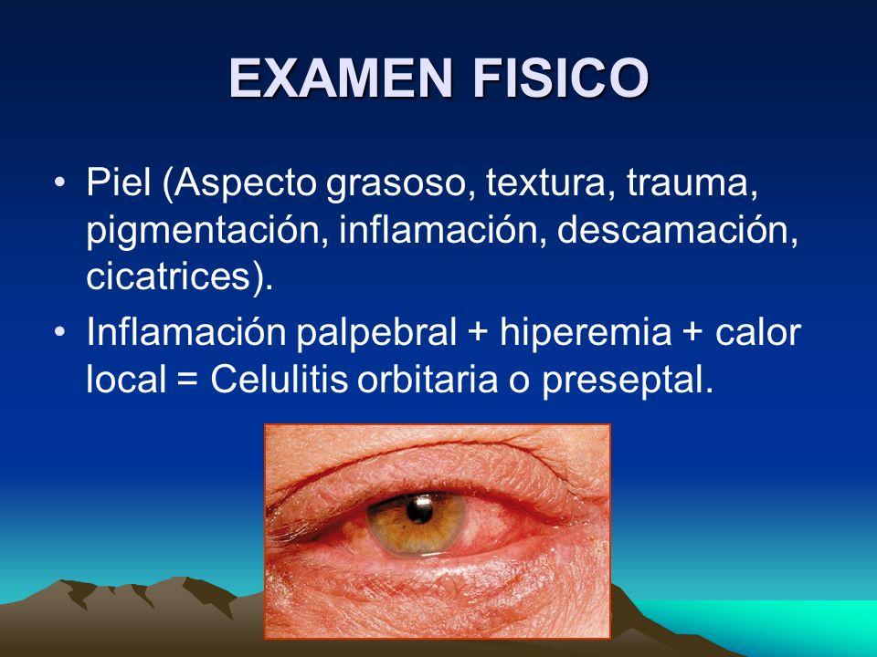 EXAMEN FISICO Piel (Aspecto grasoso, textura, trauma, pigmentación, inflamación, descamación, cicatrices).