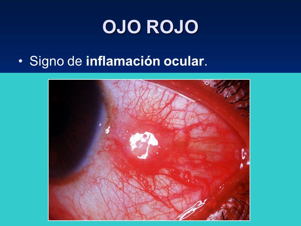OJO ROJO Signo de inflamación ocular.