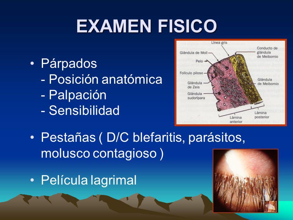 EXAMEN FISICO Párpados - Posición anatómica - Palpación - Sensibilidad
