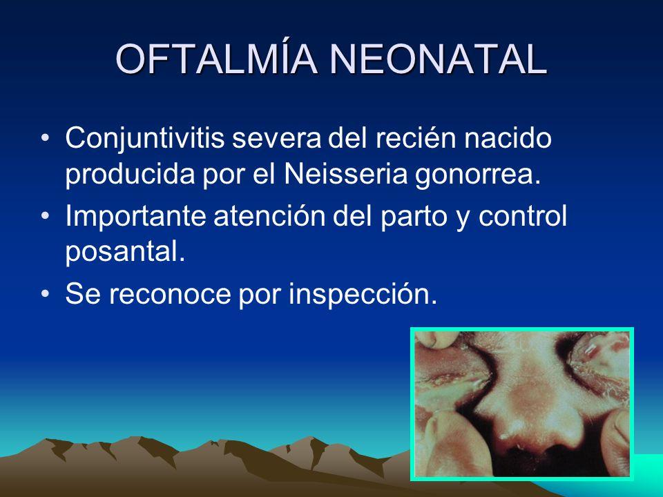 OFTALMÍA NEONATAL Conjuntivitis severa del recién nacido producida por el Neisseria gonorrea. Importante atención del parto y control posantal.