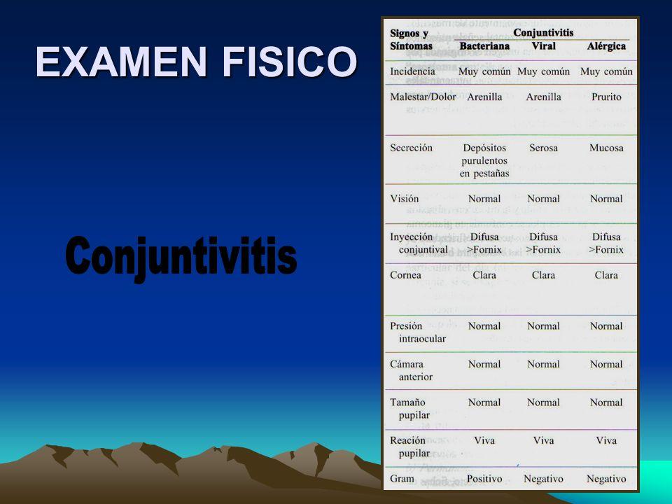 EXAMEN FISICO Conjuntivitis