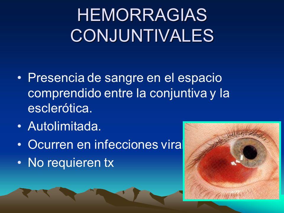 HEMORRAGIAS CONJUNTIVALES