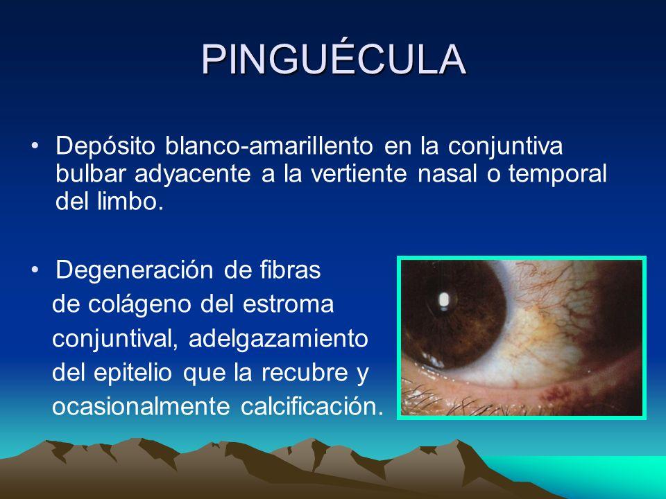 PINGUÉCULA Depósito blanco-amarillento en la conjuntiva bulbar adyacente a la vertiente nasal o temporal del limbo.