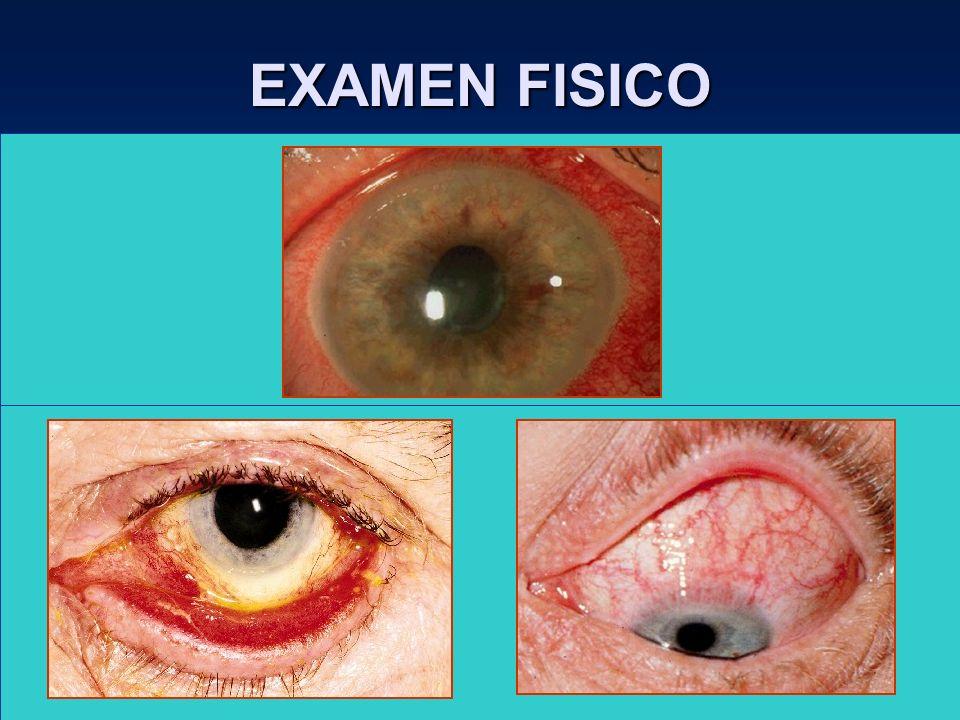 EXAMEN FISICO Córnea. QPS : Ojo seco, ectropión, entropión. Micropanus : Conj. Inclusión, tracoma, abuso LC, etc.