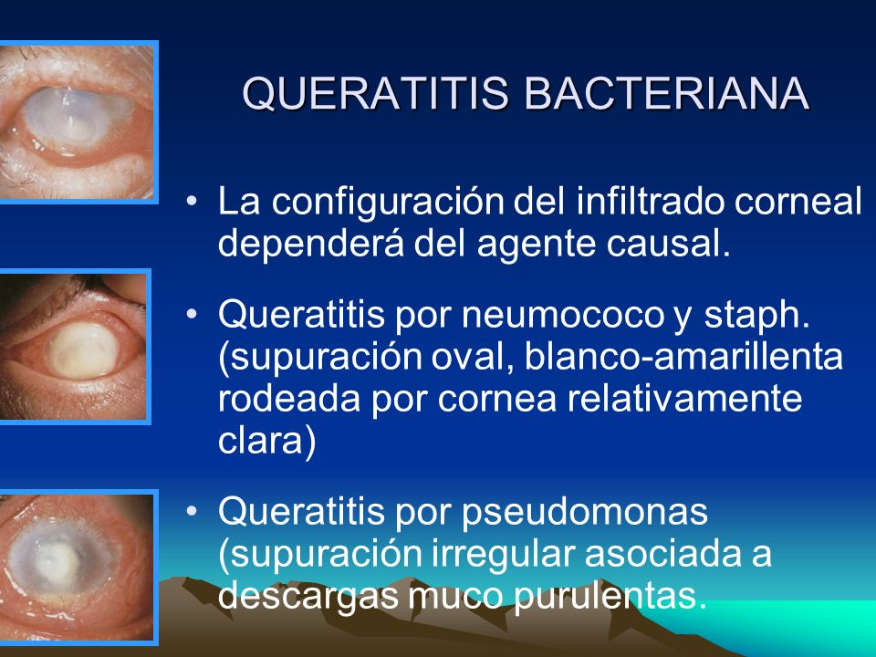 QUERATITIS BACTERIANA