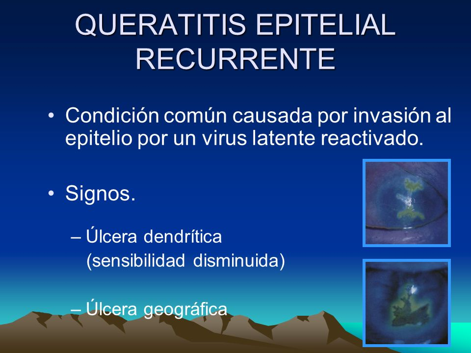 QUERATITIS EPITELIAL RECURRENTE