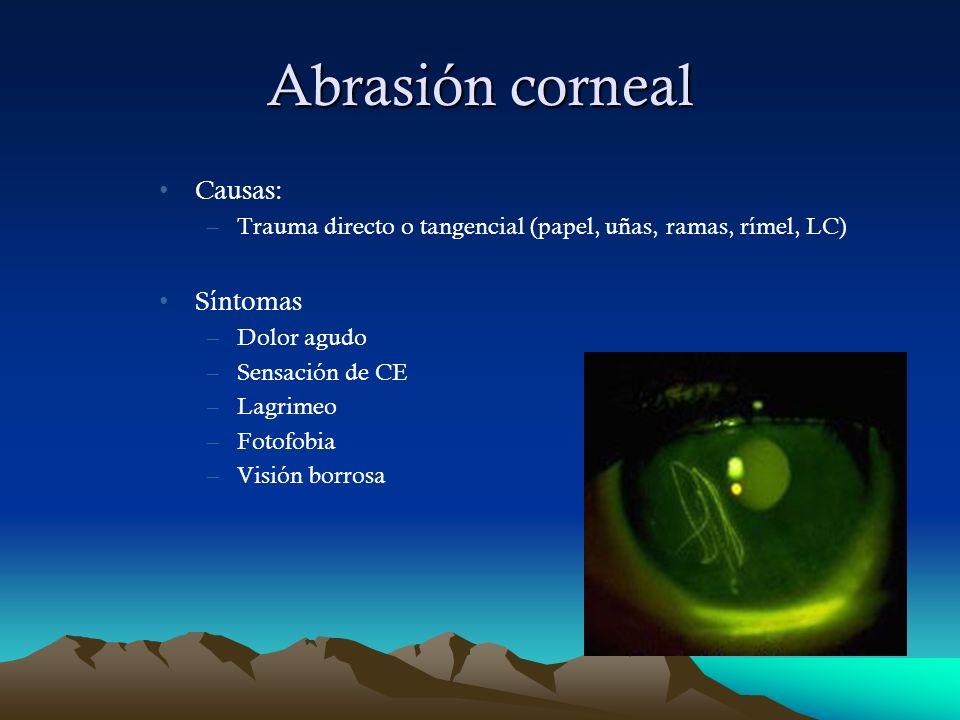 Abrasión corneal Causas: Síntomas