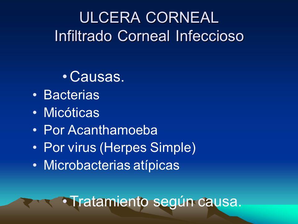 ULCERA CORNEAL Infiltrado Corneal Infeccioso