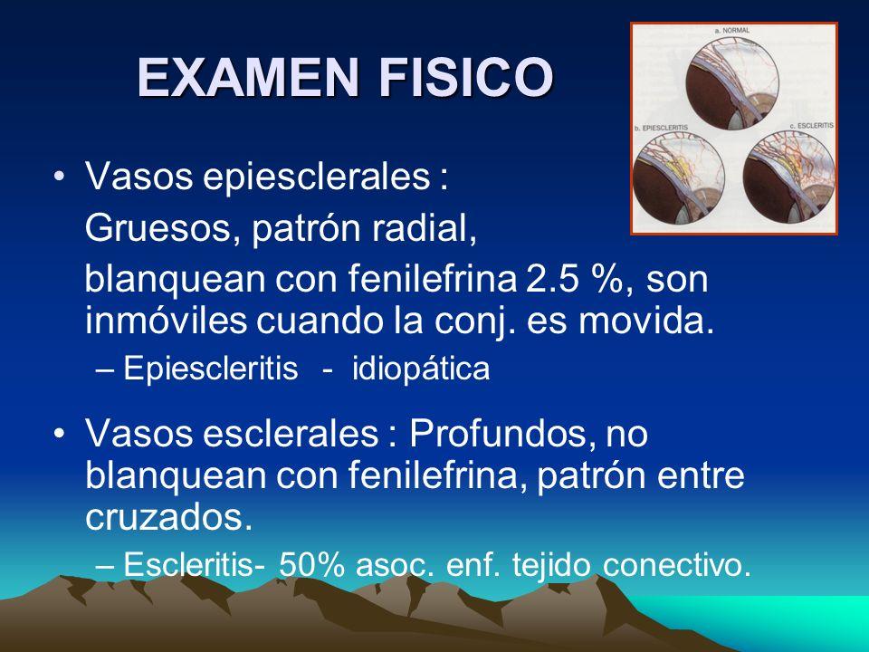 EXAMEN FISICO Vasos epiesclerales : Gruesos, patrón radial,