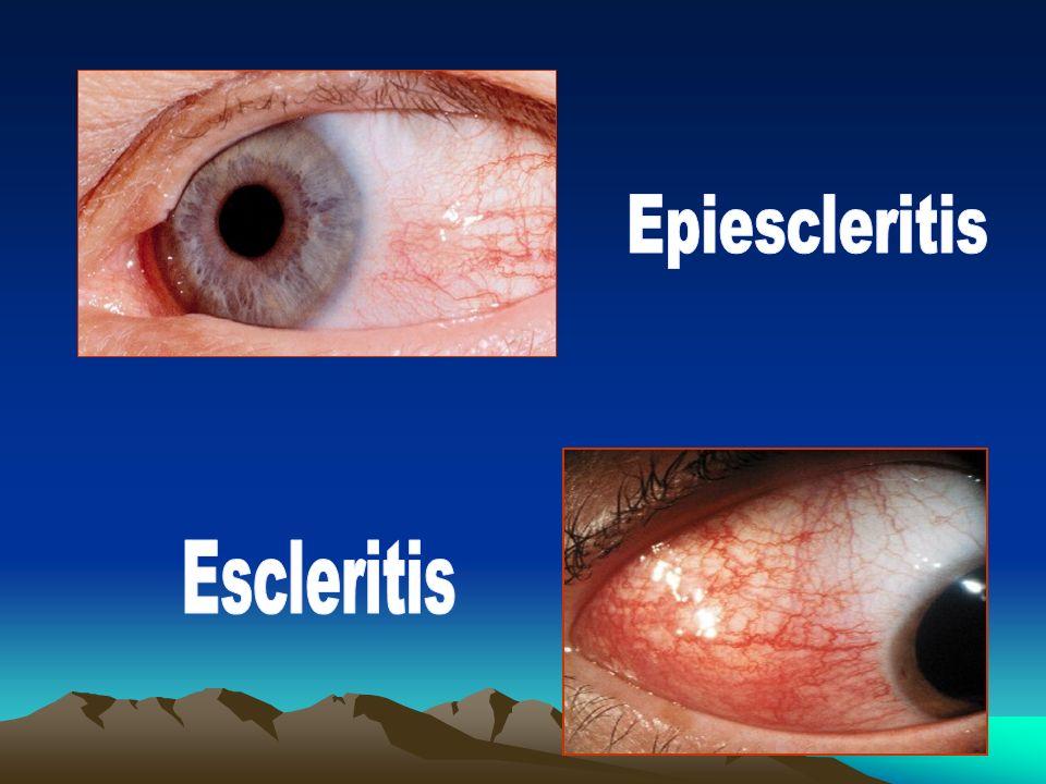 Epiescleritis Escleritis