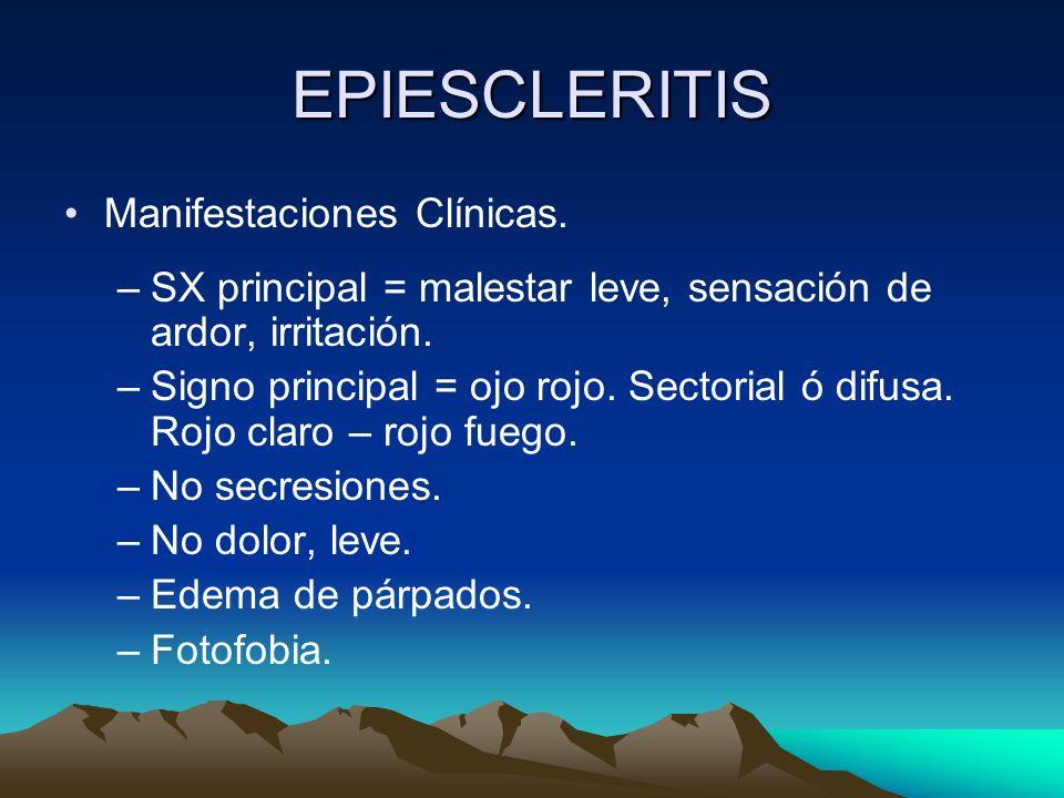 EPIESCLERITIS Manifestaciones Clínicas.