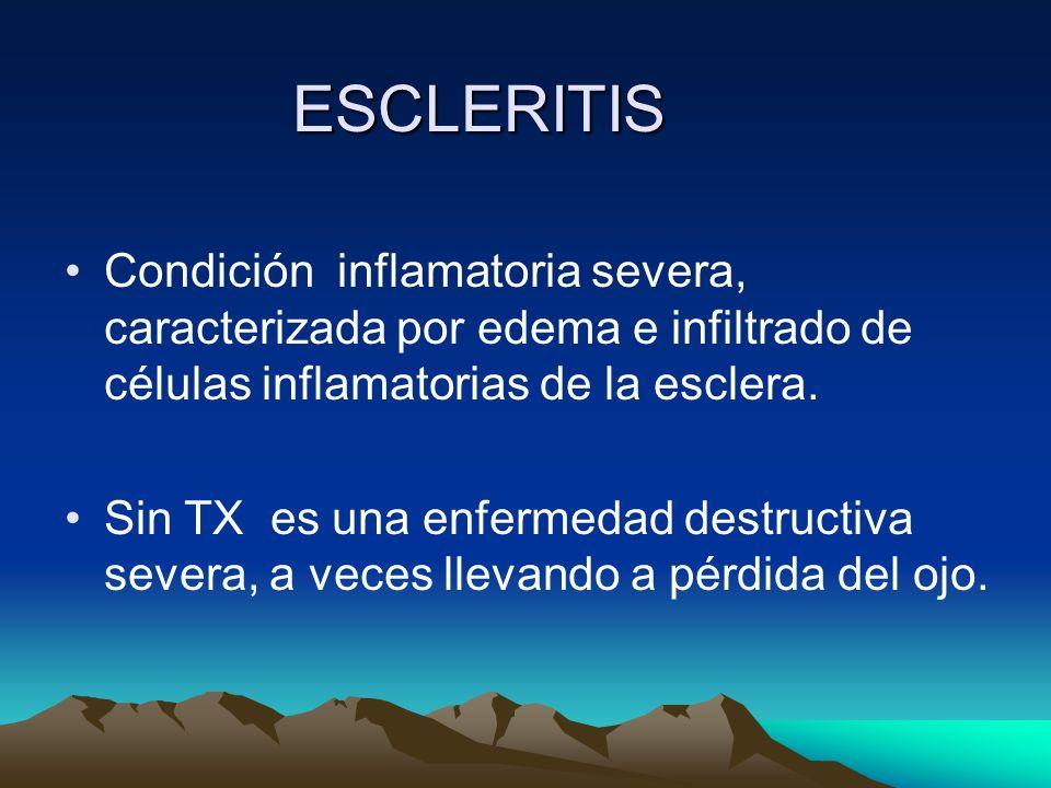 ESCLERITIS Condición inflamatoria severa, caracterizada por edema e infiltrado de células inflamatorias de la esclera.
