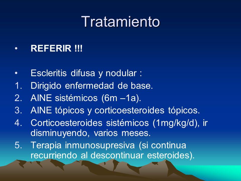 Tratamiento REFERIR !!! Escleritis difusa y nodular :