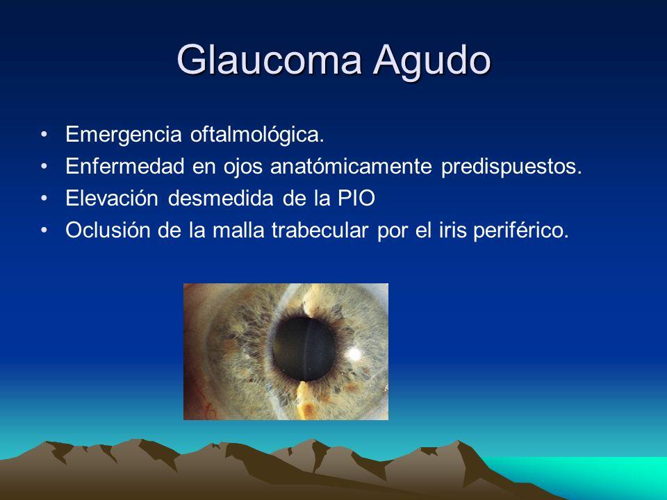 Glaucoma Agudo Emergencia oftalmológica.
