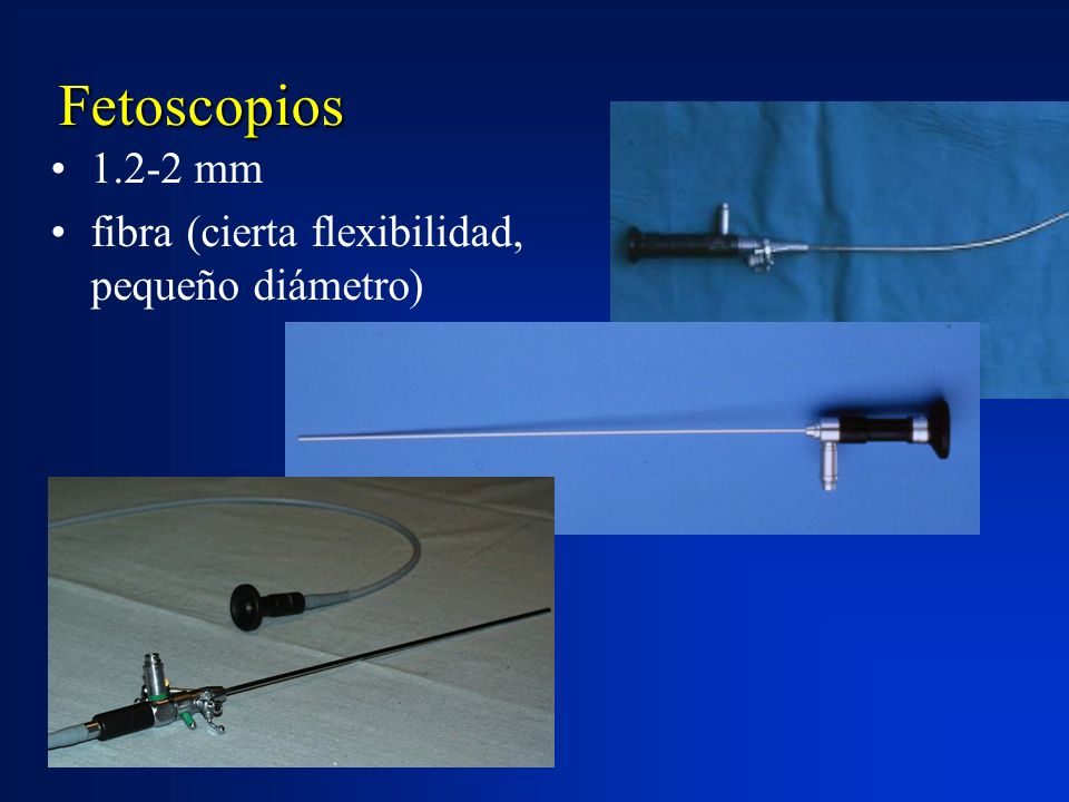 Fetoscopios 1.2-2 mm fibra (cierta flexibilidad, pequeño diámetro)
