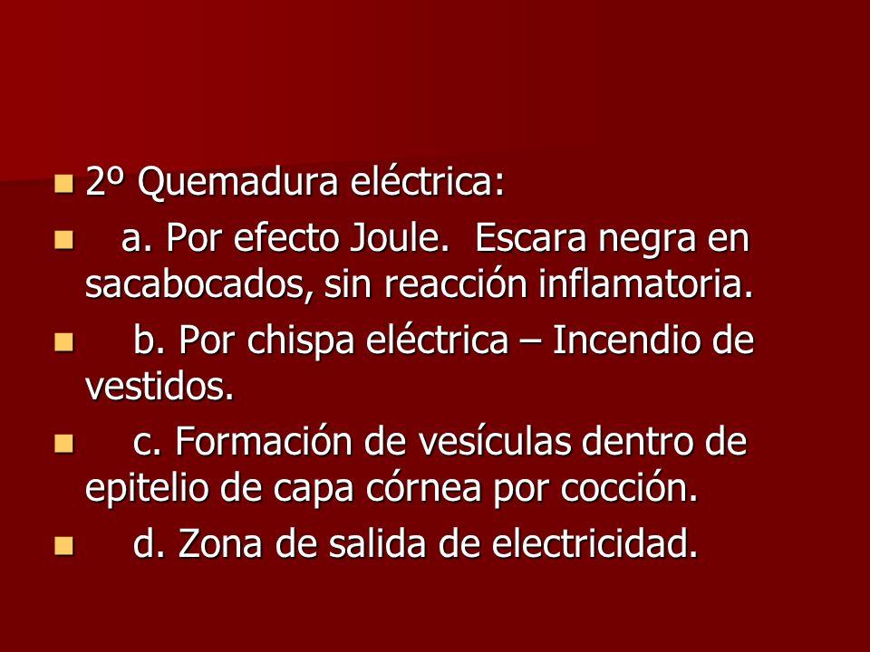 2º Quemadura eléctrica: