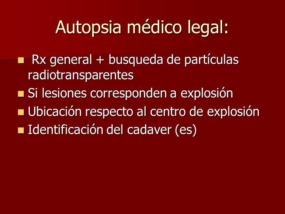 Autopsia médico legal: