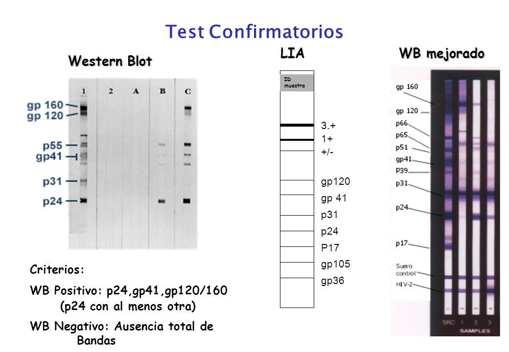 Test Confirmatorios LIA WB mejorado Western Blot Criterios: