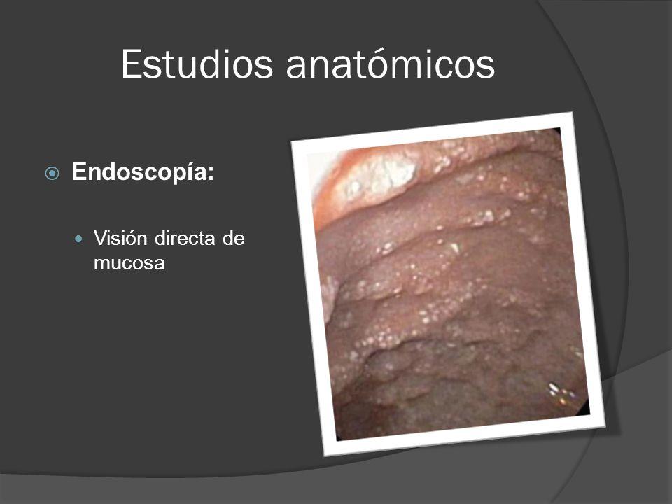 Estudios anatómicos Endoscopía: Visión directa de mucosa