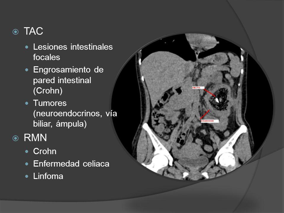 TAC RMN Lesiones intestinales focales